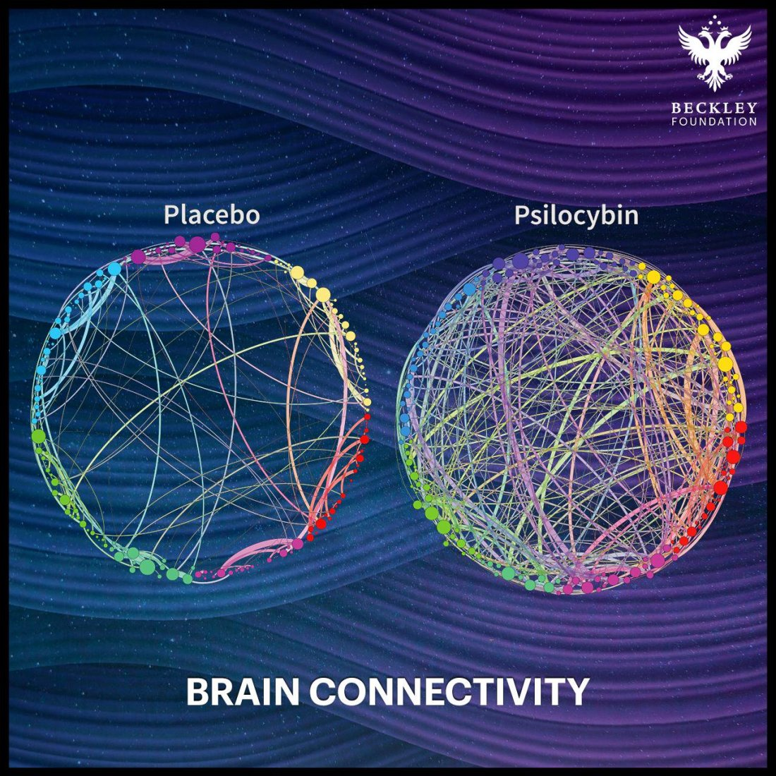 psilocybin brain connectivity